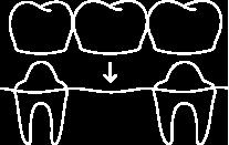 ikona_Rekonstrukce_zubu